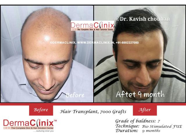 Best Hair Transplant Results India