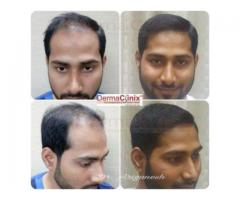 Hair Transplantation At 0% Risk Free at Best Hair Transplant Clinic in Chennai