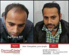 Best Hair Transplant Center in Delhi