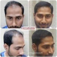 Best Hair Transplant Clinic in Chennai