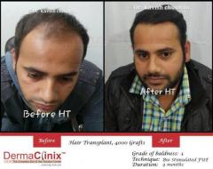 Hair Transplant Results in New Delhi
