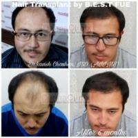 Post Hair Care Treatment After Hair Transplantation