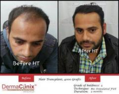 Important Factors to Consider while Choosing a Hair Transplant Clinic