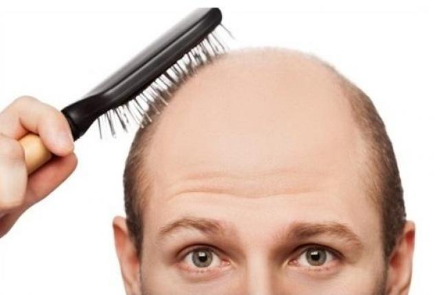 Some Common Myths Related to Hair Transplantation