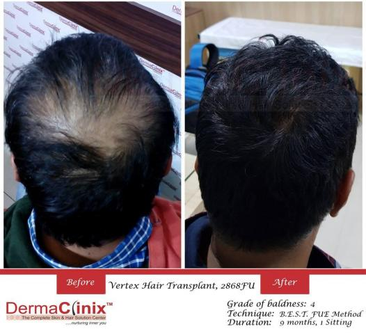Hair Transplant – A Viable and Affordable Treatment Alternative for Baldness