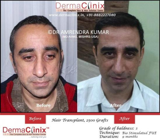 Get the Best Recovery After Hair Transplant Surgery
