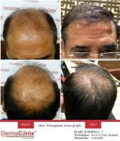 The Battles of Hair Transplant Procedures: FUT vs FUE
