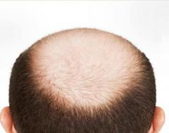 Best Baldness Treatment in Delhi NCR