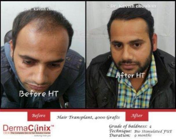 Hair Transplant Center in Delhi