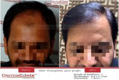 Where To Get Your Hair Transplantation Done in Delhi?