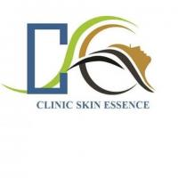 Best Acne Scar Treatment in