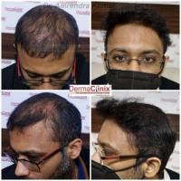 Know Everything About Hair Transplant Treatment