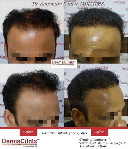 How to get the best and affordable Hair Transplant in Delhi